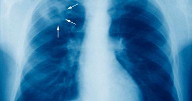 Tuberculoza poate fi transmisă printr-o simplă respirație